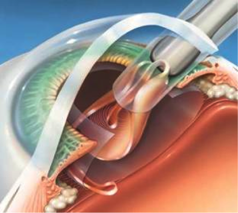Implante de lente intraocular multifocal