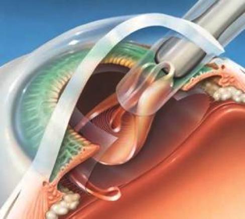 Implante de lente intraocular multifocal