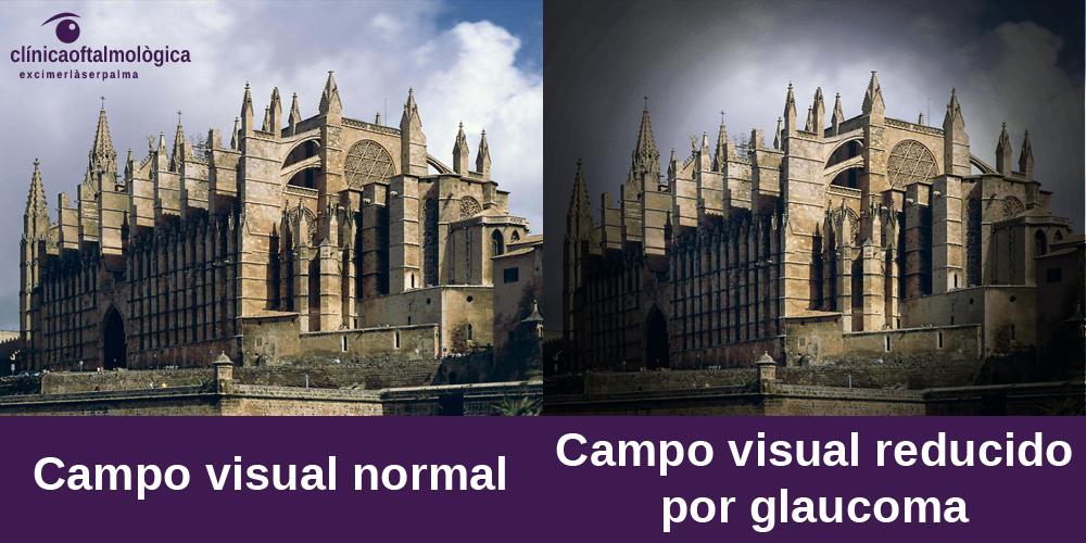 Síntomas de glaucoma