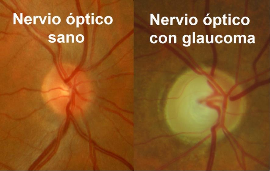 Nervio óptico sano y con glaucoma