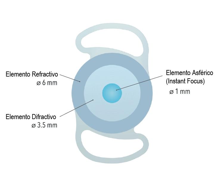 Nuevas lentes para cirugía de cataratas - InFo