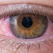 Conjuntivitis por coronavirus - Excimer Láser Palma